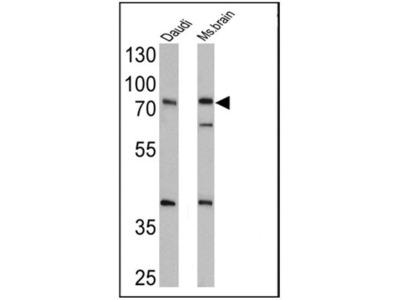 Rabbit Polyclonal epithelial Sodium Channel alpha Antibody