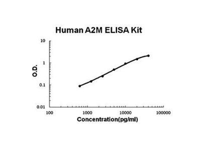 Human alpha 2 Macroglobulin ELISA Kit