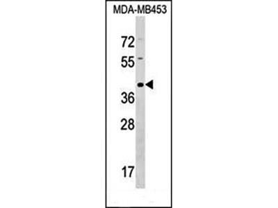 TAS2R9 antibody
