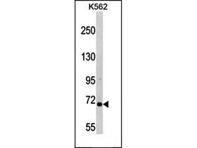 ARHGEF6 antibody