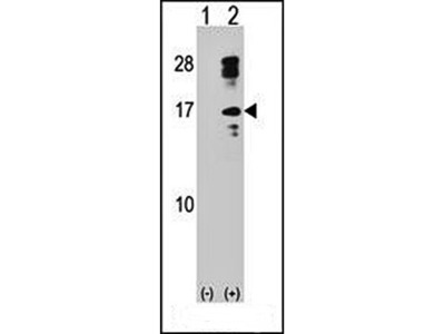 CLC antibody