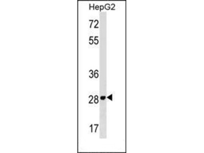 PMM2 antibody