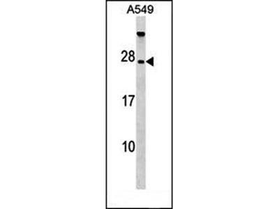 TBC1D28 antibody