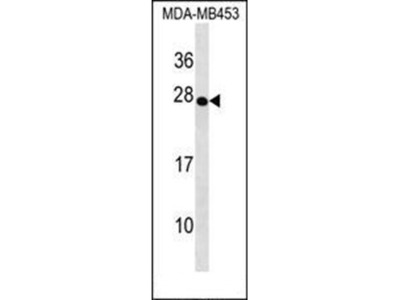 TRDC antibody