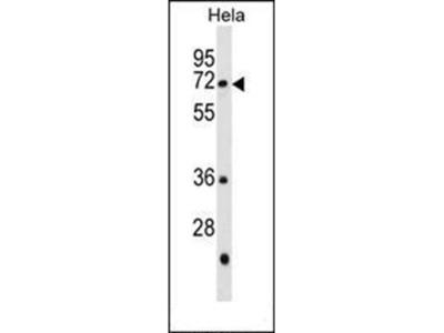 GALNT13 antibody