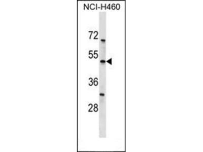 KCNK12 antibody