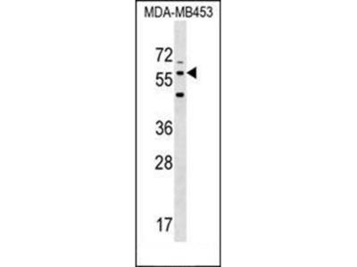 LRRTM2 antibody