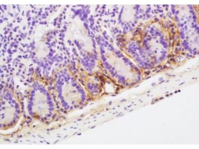 POD1 antibody