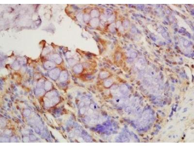 Thrombomodulin antibody