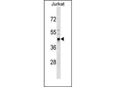CRELD2 antibody