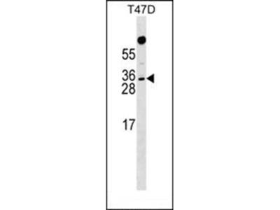 RHOXF1 antibody