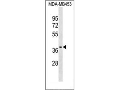 P2RX3 antibody
