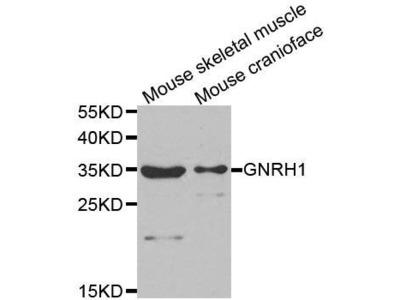 GNRH1 antibody