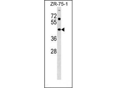 ZNF323 antibody