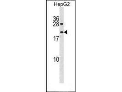 PPIAL4A antibody