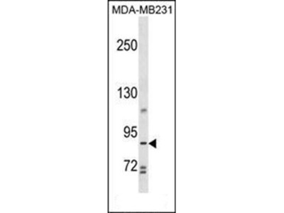 TROAP antibody