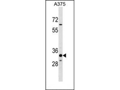 THEM5 antibody
