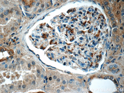 SNCAIP Antibody
