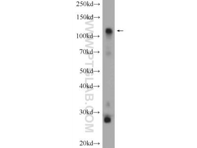 HK1 antibody