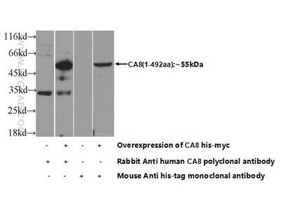 C8A Polyclonal Antibody
