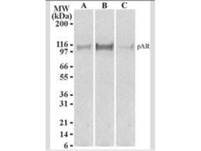 Androgen R /NR3C4 [p Ser210, p Ser213] Antibody (156C135.2) - Azide Free