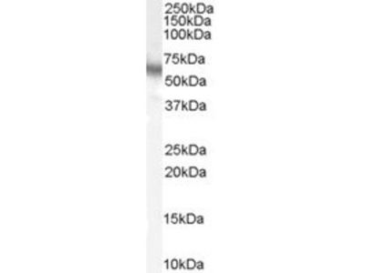 GOAT ANTI HUMAN p70S6K (C-TERMINAL)