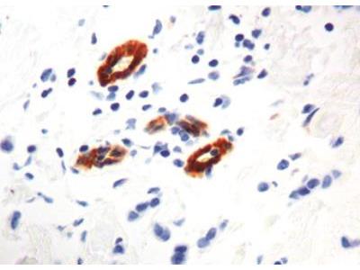 Mouse Monoclonal Transglutaminase 2 / TGM2 Antibody