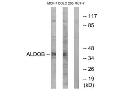 anti Aldolase B / ALDOB (111-160)