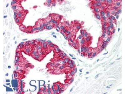 KRT8 / CK8 / Cytokeratin 8 Monoclonal Antibody