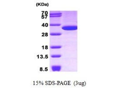 ANXA5 (Annexin A5) Protein