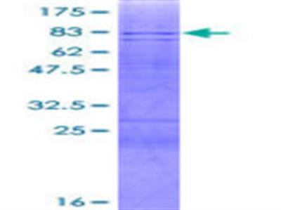 AMY2B Protein