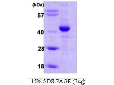 Hypoxia Inducible Factor 1, alpha Subunit Inhibitor (HIF1AN) (AA 1-349) protein