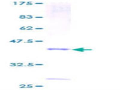 PLA2G2D Protein