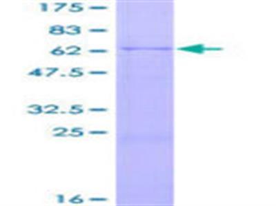 DFFB Protein