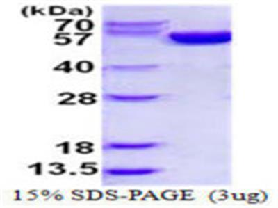 G6PD (G6pd2) Protein