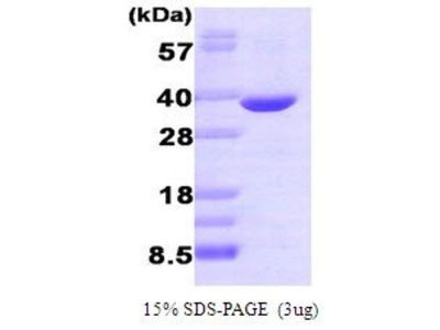 Active Recombinant AKR1B1 Protein