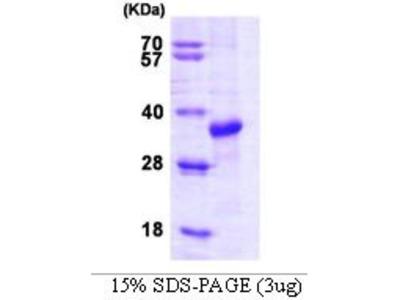 STUB1 (CHIP) Protein