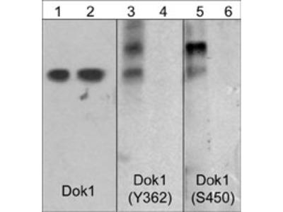 Dok1 (Tyr-362)[Dok2 (Tyr-337)], phospho-specific Antibody