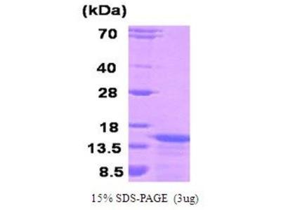 KISS1 Protein