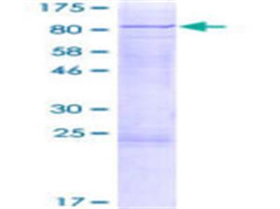 CDC73 (hyrax) Protein