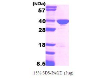 GAPDH Protein