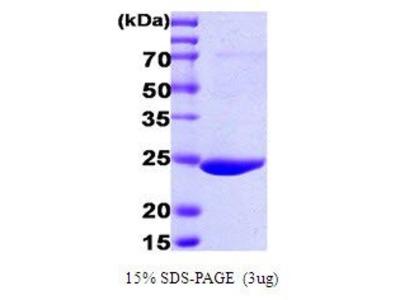 GST (GSTK1) protein
