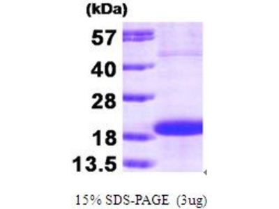 S-Phase Kinase-Associated Protein 1 (SKP1) (AA 1-160) protein