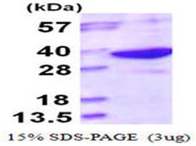 LHPP Protein