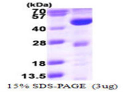 ACADL Protein