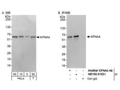 Importin alpha 3 / KPNA4 Antibody