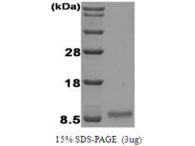 IGF1 Protein
