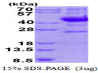 NEU1 Protein
