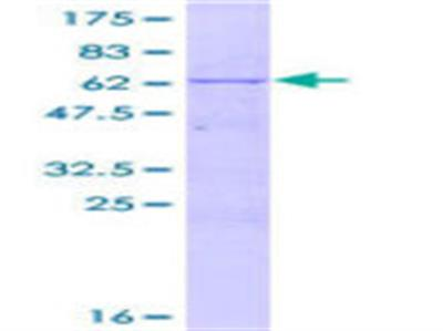 DNTTIP1 Protein