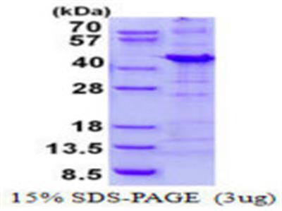 NAA10 (PPP1R8) Protein